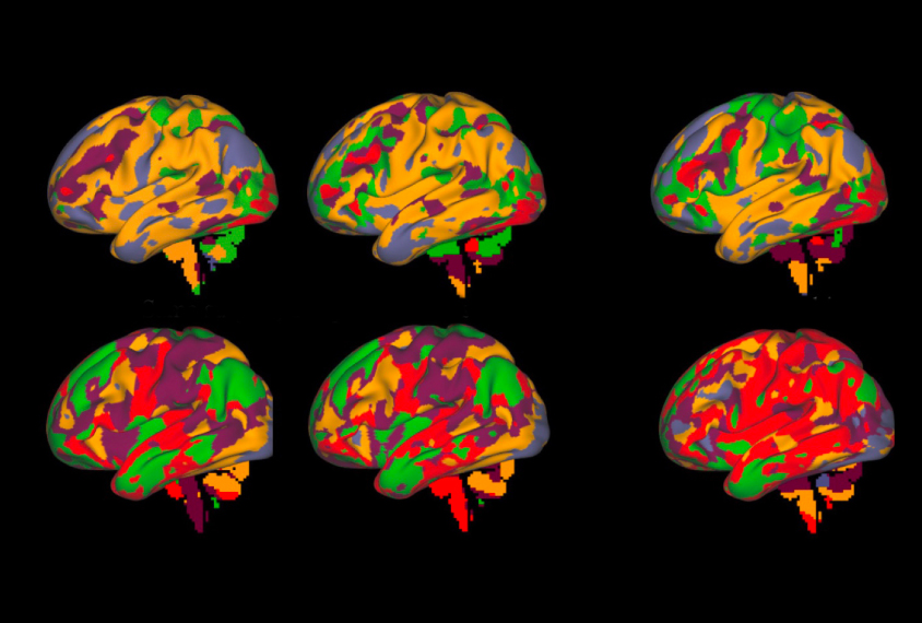 Group of 6 brains show sections colored differently