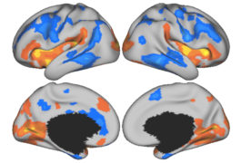 Four brains with different areas colored in red, orange, yellow and black.