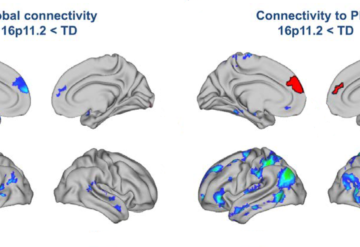 eight brains with various sections highlighted