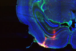 Mouse brain photograph shows the area of drug delivery highlighted in red.