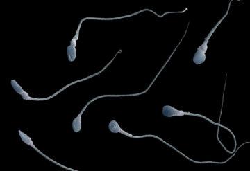 Microscopic view of spermatozoa