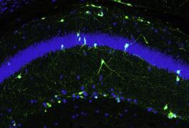 Neurons glow green in mice brain.