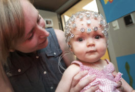 Baby with EEG cap looks at camera.