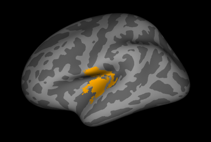 Three dimensional rendering of the human brain with yellow area showing a change in folding patterns.