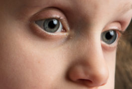Image shows a close up view of a child's eyes