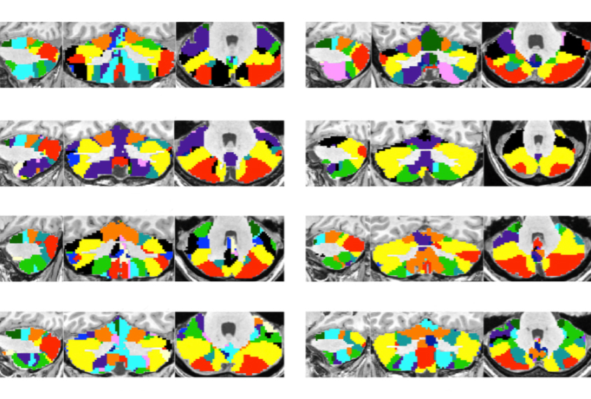 a series of brain images