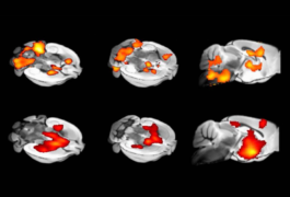 Color-coded mouse brain scans