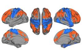 Human brain seen in four views