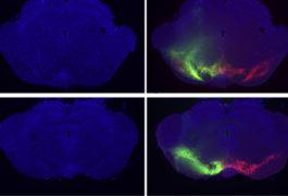 Cells in a rat brain