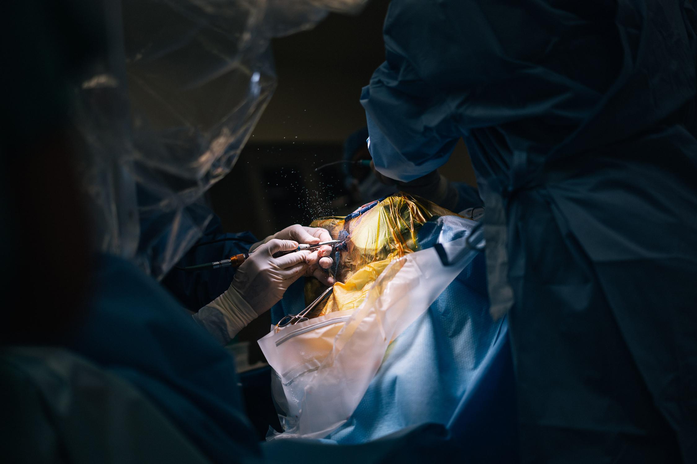 the brain surgery begins