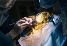 medical personnel in operating theater during brain surgery