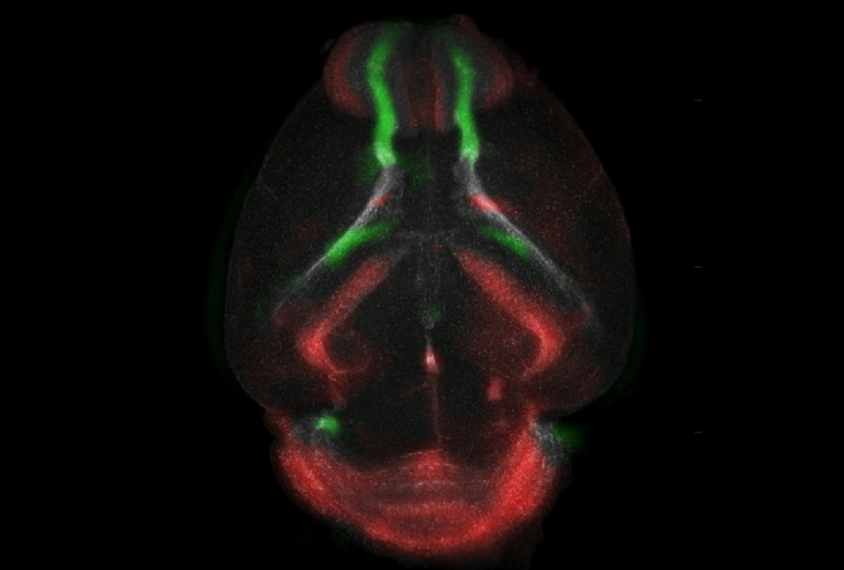 A new technique helps reveal patterns in the migration of neurons (green) to their destination (red).