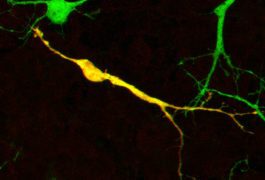 Neurons in a mouse brain are highlighted green and yellow