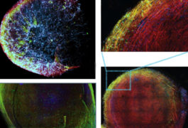 Group of four organoid images