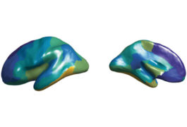 Two sides of a 3D human brain showing different areas highlighted in various colors