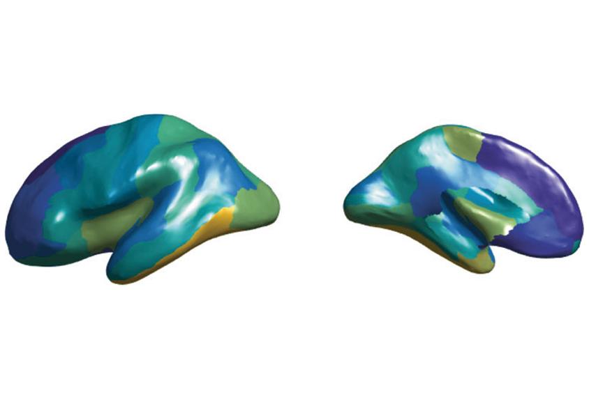 3D人脑的两侧显示出用不同颜色突出的不同区域