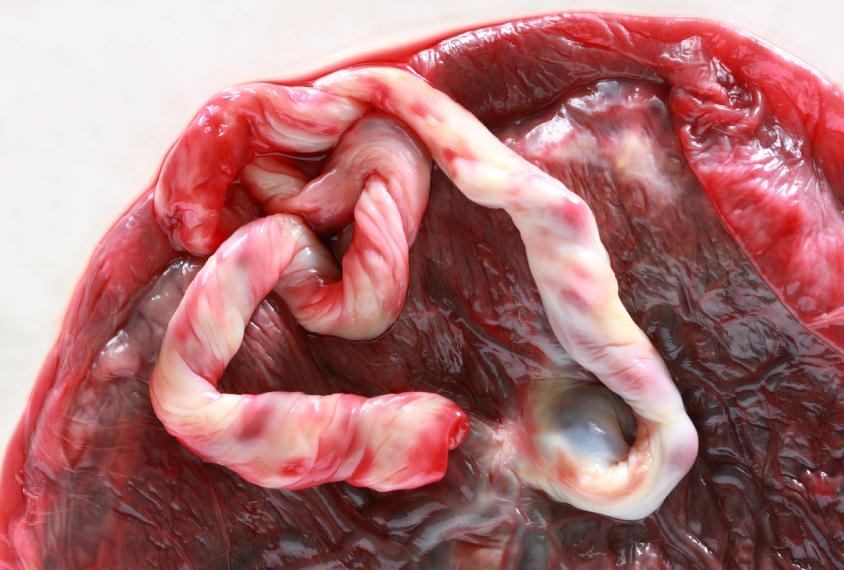 umbilical cord and placenta