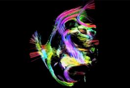 rainbow colors trace marmoset brain