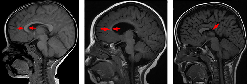 three MRIs with the corpus callosum highlighted by red arrows