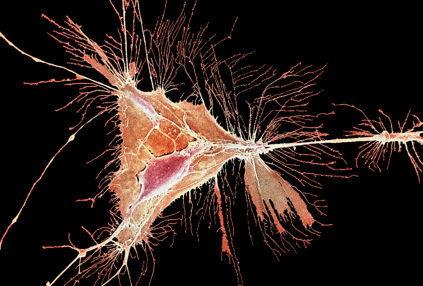 Oligodendrocyte shown orange on black in this scanning electron micrograph.