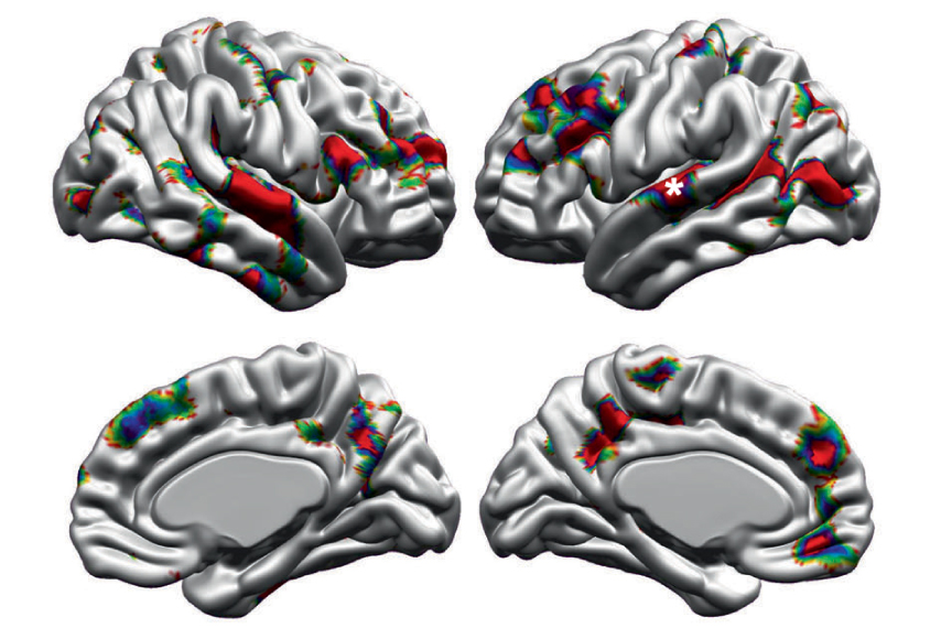 four brain views, seen from the side.