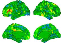 group of 4 brain views