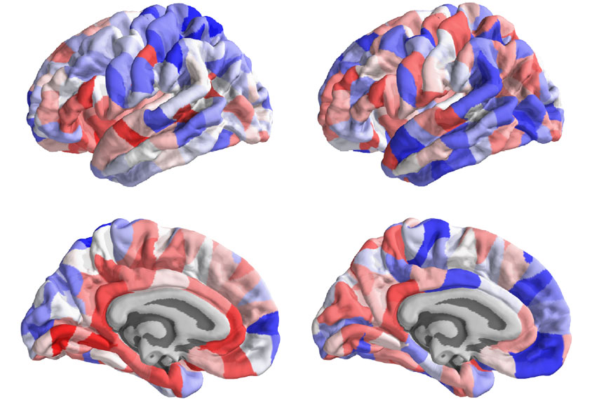 Brain images color-coded to show structural changes in autism.