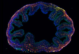 Gut neurons and glia (red, green) are fragile and interwoven with other cells (blue) in the colon, making them tricky to isolate.