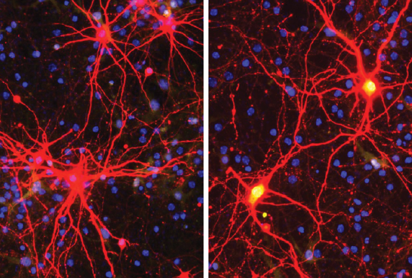Micrograph of nerve cells being targeted by CRISPR enzyme to activate the silenced gene in Angelman syndrome