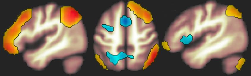 brain scan FPN