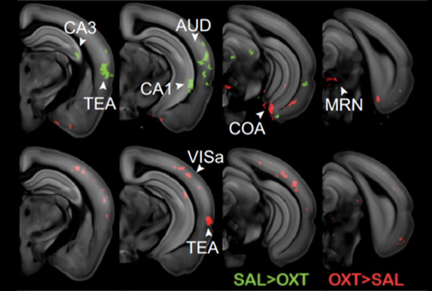 Scans of mouse brain slices showing differences in oxytocin levels