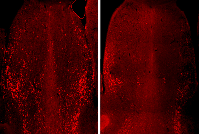 Mouse brain slices shown in red