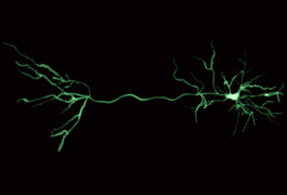 A digital rendering of a green neuron on black