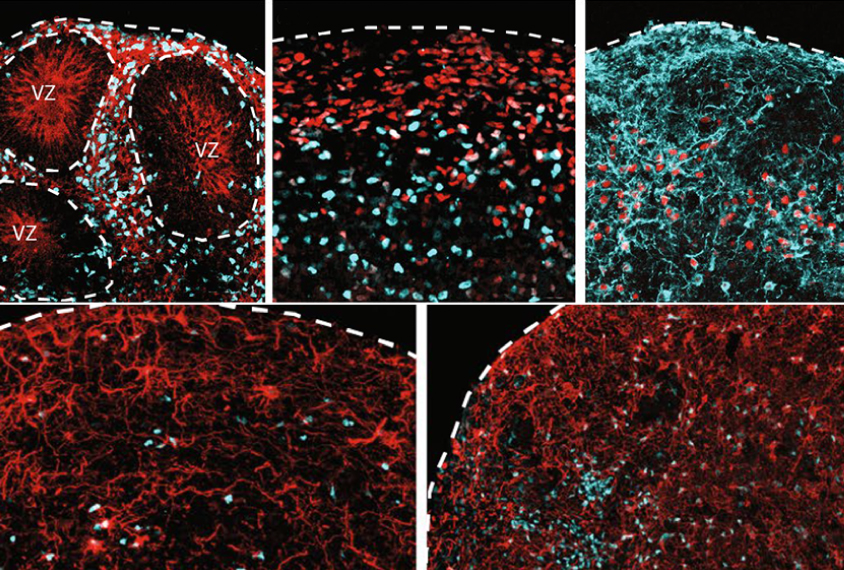 Microscopic views of cortical organiods stained red and green.
