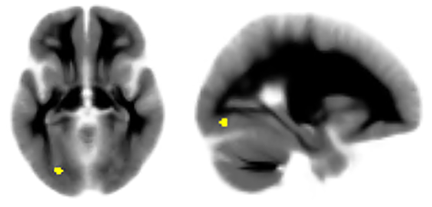 two brain images