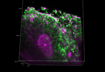 By imaging spheroids in 3D, researchers can see structures called rosettes, in which immature brain cells (green) surround a cavity (pink), of a variety of shapes and sizes.