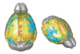Mouse brains carrying CUL3 gene mutation reveal unusually thin cortical tissue.