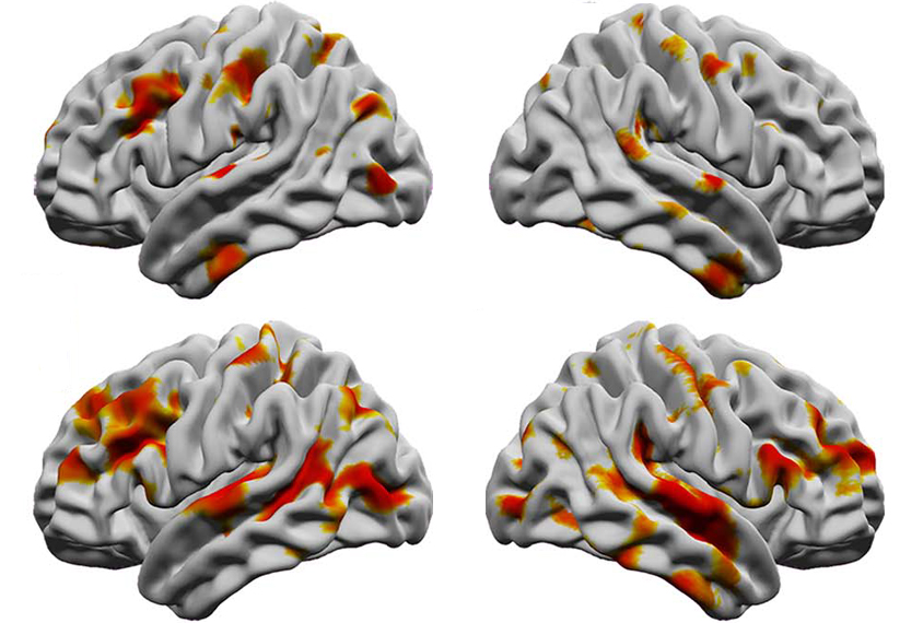 Brains scans reveal sharper boundaries between white and gray matter in autistic people.