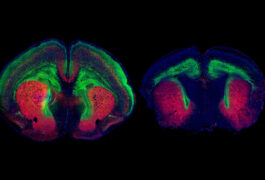 Two views of mouse brain slices colorized in green and red.