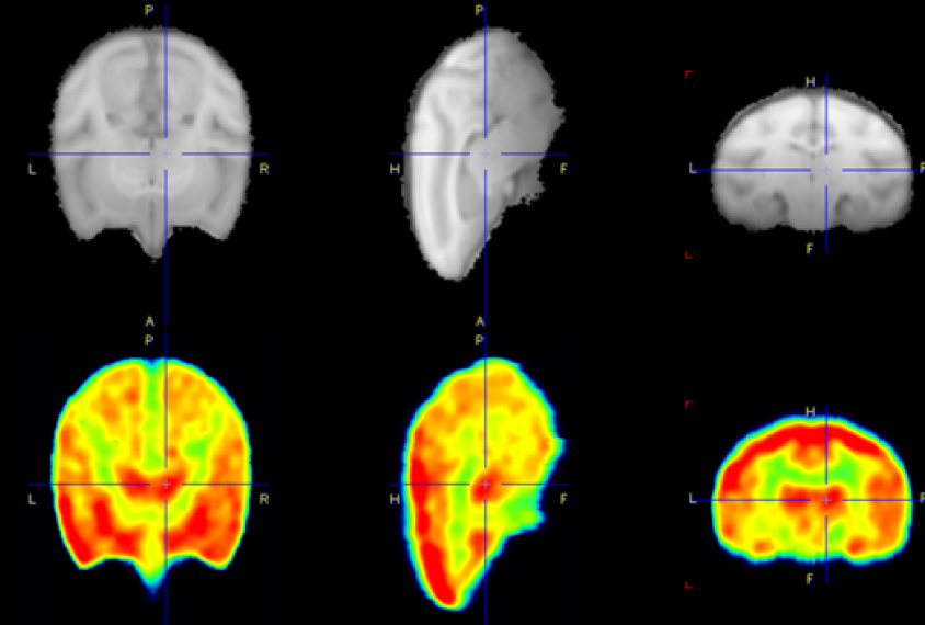 three black and white monkey brain views next to three color versions showing the a drug target area colored red.