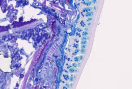 Mouse gut cells in blue, purple and pink