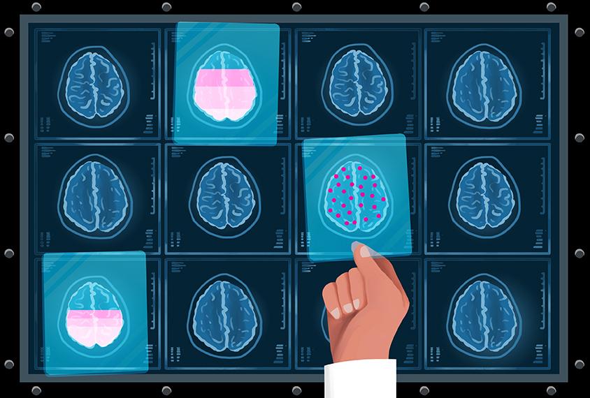 不同的血清素水平在大脑