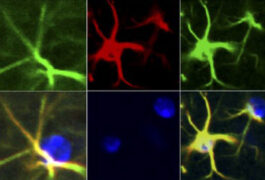 Micrographs of mouse astrocytes with high levels of inflammatory molecules.