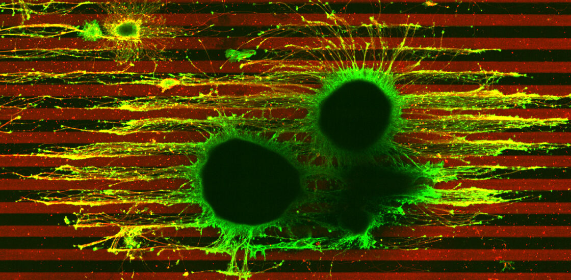 Micrograph of two developing axons, one with one copy of TSC2 gene and the other with two copies.
