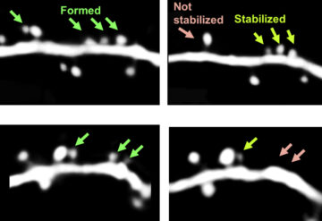 Micrographs comparing motor cortex neurons in mice with and without an extra copy of MECP2 gene.