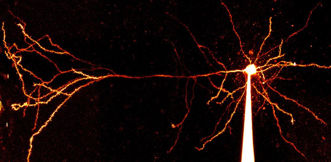Images shows a pyramidal neuron.