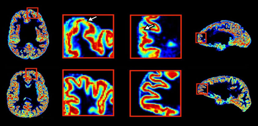Color-coded MRI images reveal that autistic people have increased gray matter in some areas.