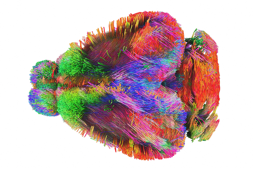 Colorful image of a composite of multiple brain scans showing communication patterns in different regions.