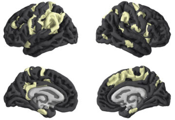 Four brains showing areas affected by the X chomosome in yellow