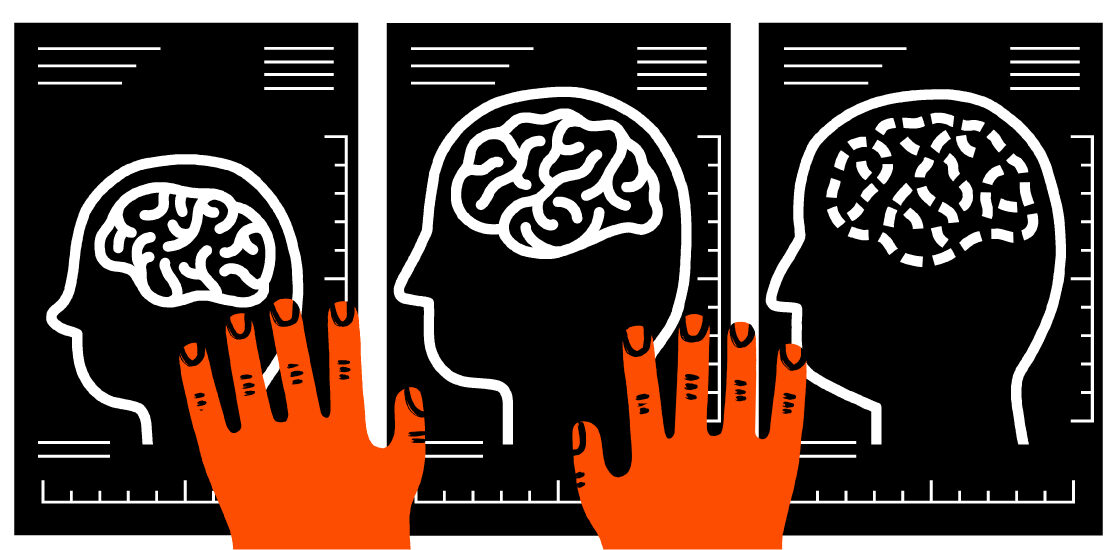 Researcher hands on three brain images taken at different ages, of different conditions.